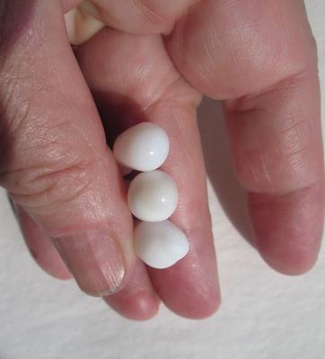 Three Fat Drop Shaped Clam Pearls 34+ carats Total