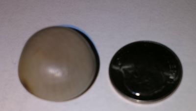 Could this be a quahog pearl?