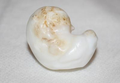 195ct Clam Pearl